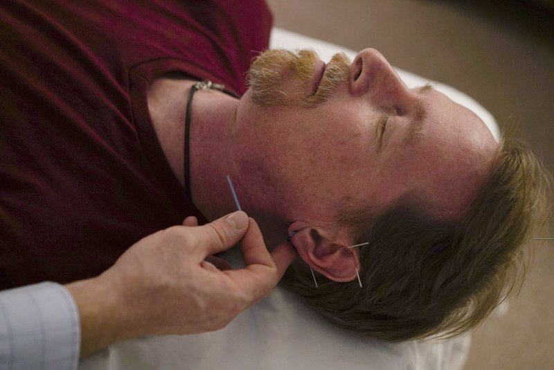 Mainstream Media Acknowledges Acupuncture as Alternative to Opioids/